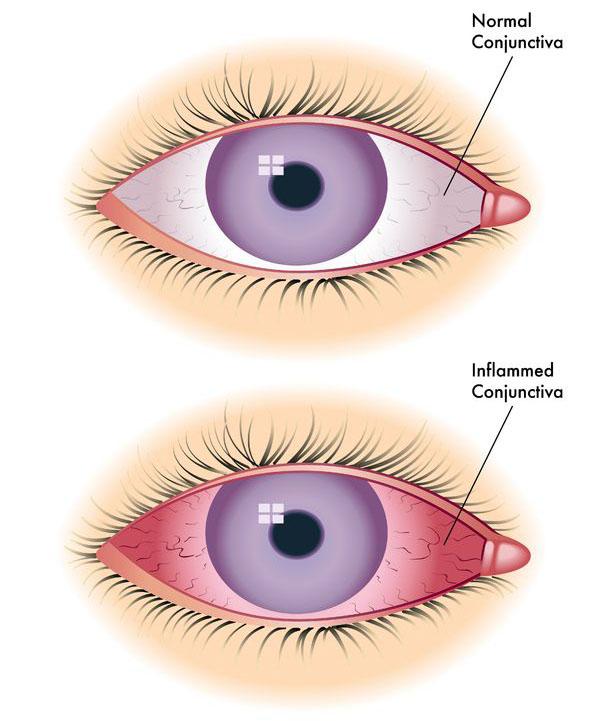 Welcome To Aditya Jyot Eye Hospitallasik Surgery In Mumbailasik In